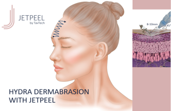 Hydra Dermabrasion with JetPeel – Face