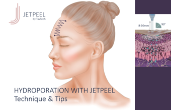 Hydroporation with JetPeel – Face
