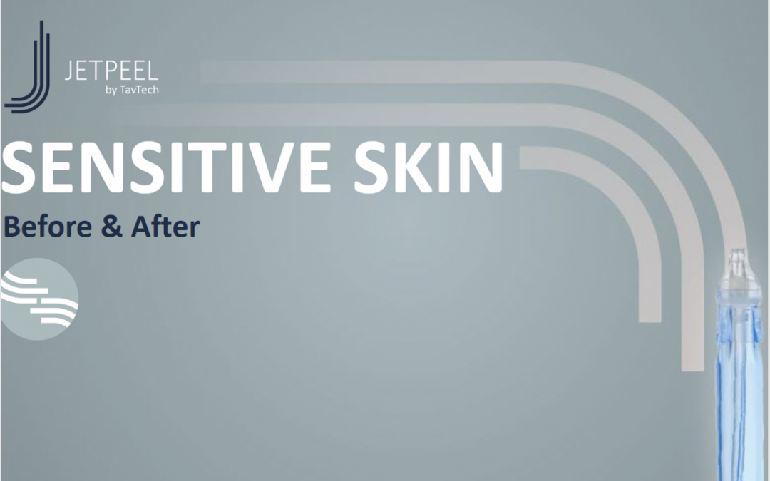 Sensetive Skin B&A