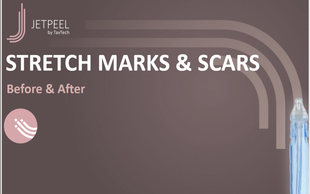 Stretch Marks & Scars B&A